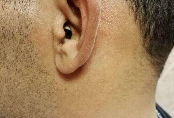 Micro auricolare nell'orecchio per i test della patente, 27enne prima in ospedale e poi arrestato