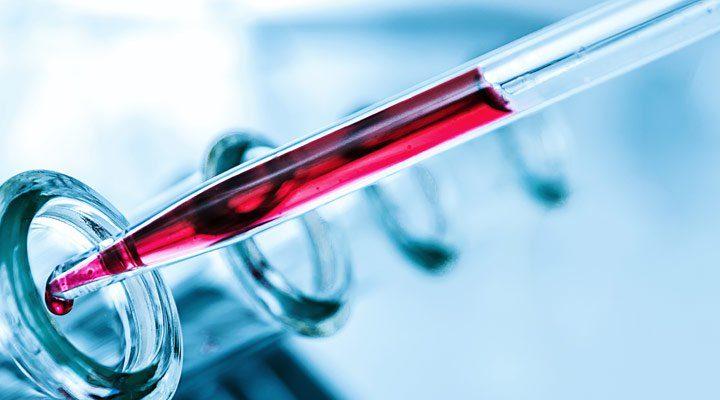 Coronavirus, negativo il caso sospetto di Velletri