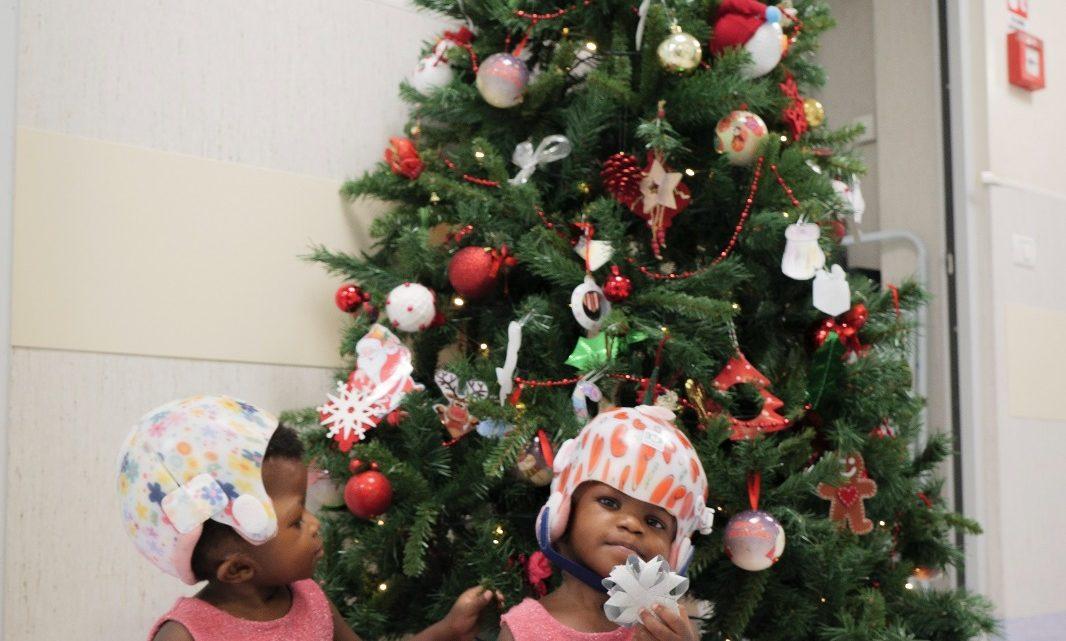 Al Bambino Gesù di Roma si festeggia il Natale con il sorriso delle gemelline siamesi